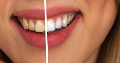 Bielenie zubov v domácom prostredí